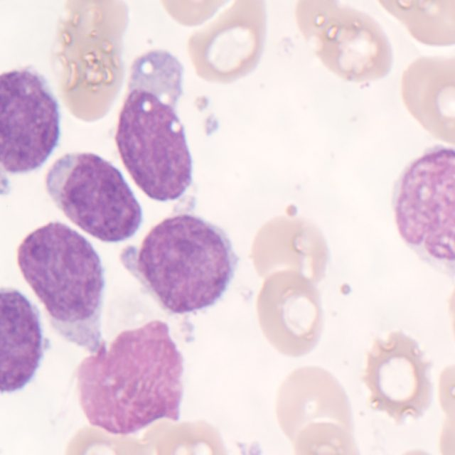 Chronic Lymphocytic Leukemia Prognostic Indicator