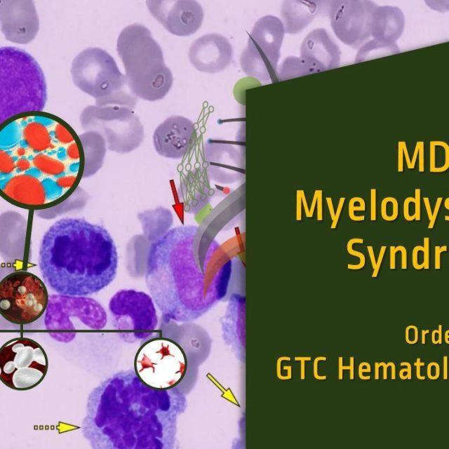 Myelodysplastic Syndrome (MDS)