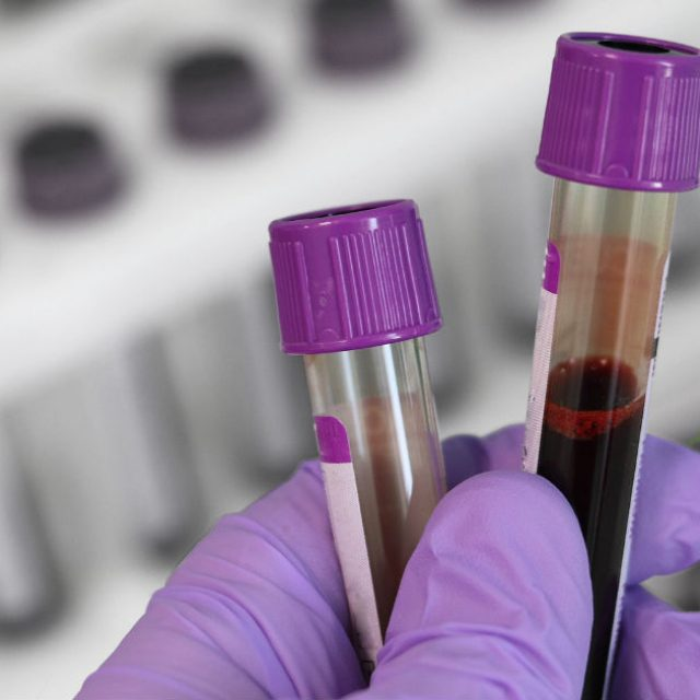 Genomic Testing Cooperative Receives Medicare (Palmetto GBA) Coverage for two NGS Hematology Molecular Profiling Tests Including Liquid Biopsy for Hematologic Neoplasms